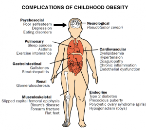 childhood_obesity_complications blogk12com